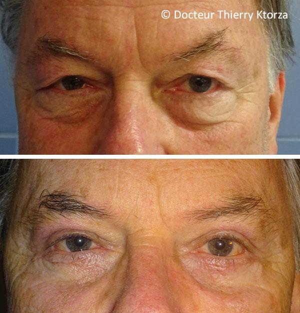 Blépharoplastie photos avant et après (paupières inférieures homme)