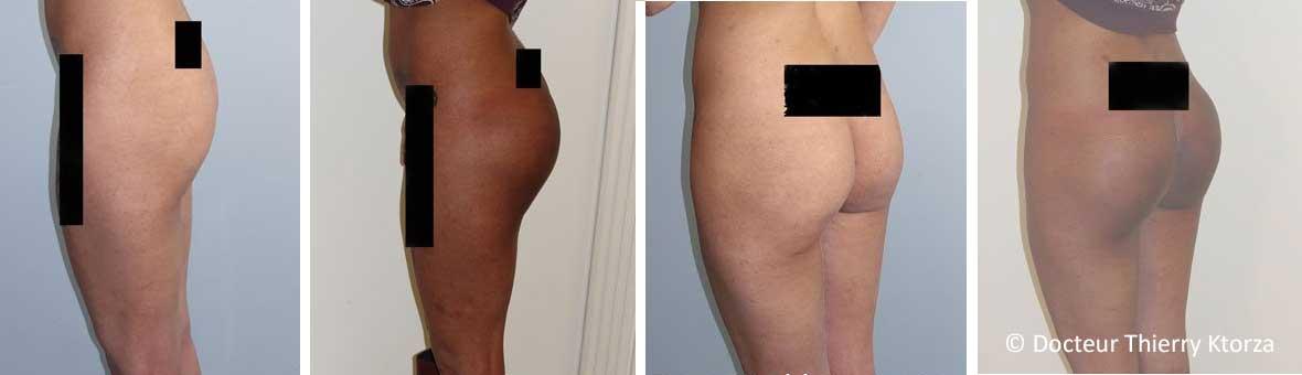 Chirurgie des fesses (implants fessiers)