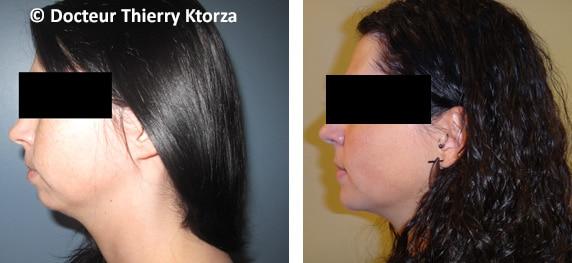Génioplastie photo avant et après (menton)