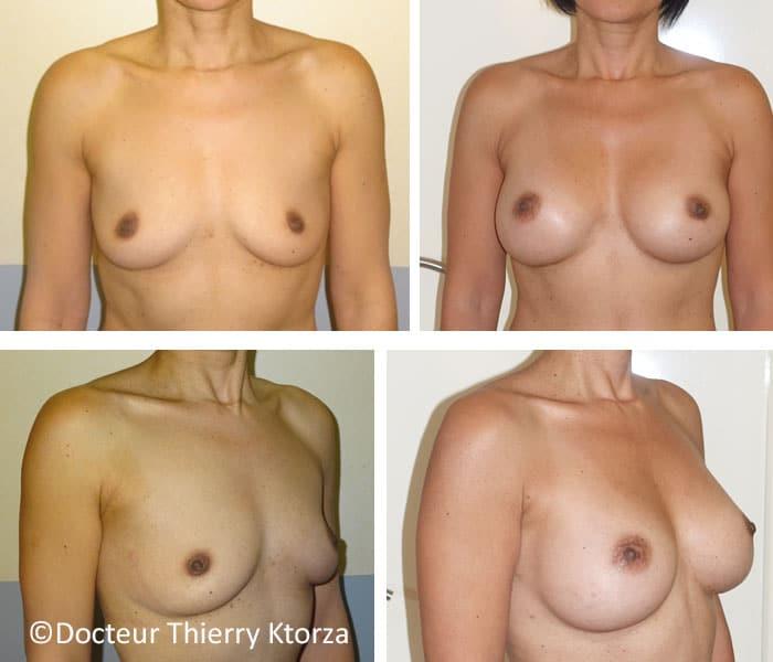 augmentation mammaire par implant anatomique