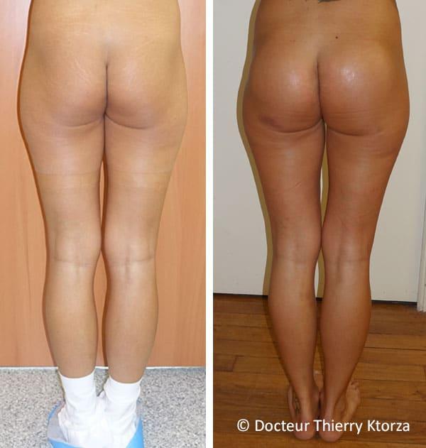 Photos avant et après des implants fessiers