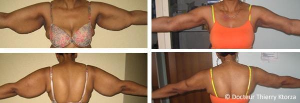 Photo avant et après un lifting de bras suite à un amaigrissement massif