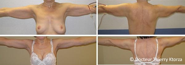 Photo avant et après un lifting de bras et ptose mammaire