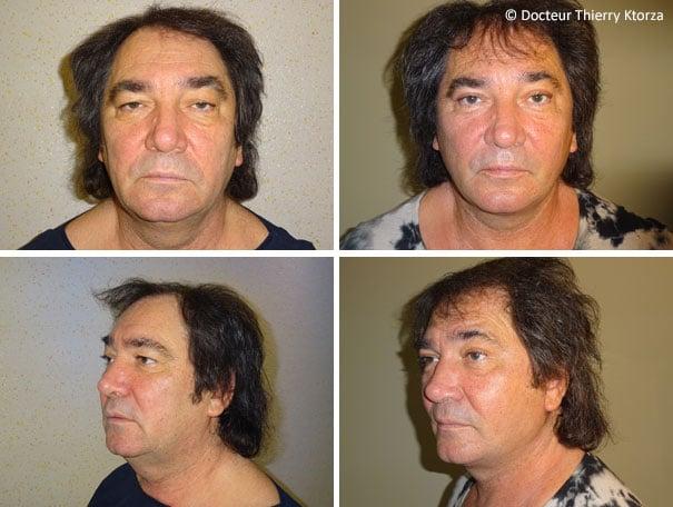 Photos avant et après un lifting de visage pour homme