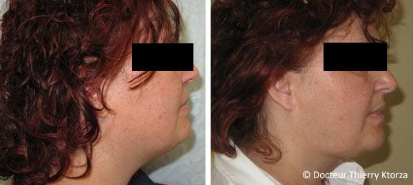 Photo avant et après une lipoaspiration du visage chez une femme de 45 ans