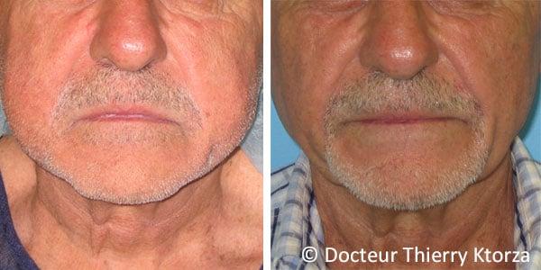 Photo avant et après une lipoaspiration du visage chez un homme