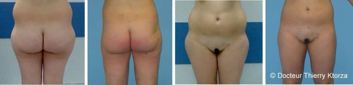 La liposuccion (avant et après une prise de poids)