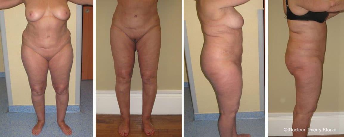 Photo avant et après une liposuccion chez une femme de 70 ans