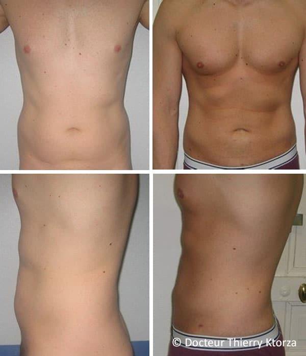 Photo avant et après une liposuccion chez un homme de 32 ans
