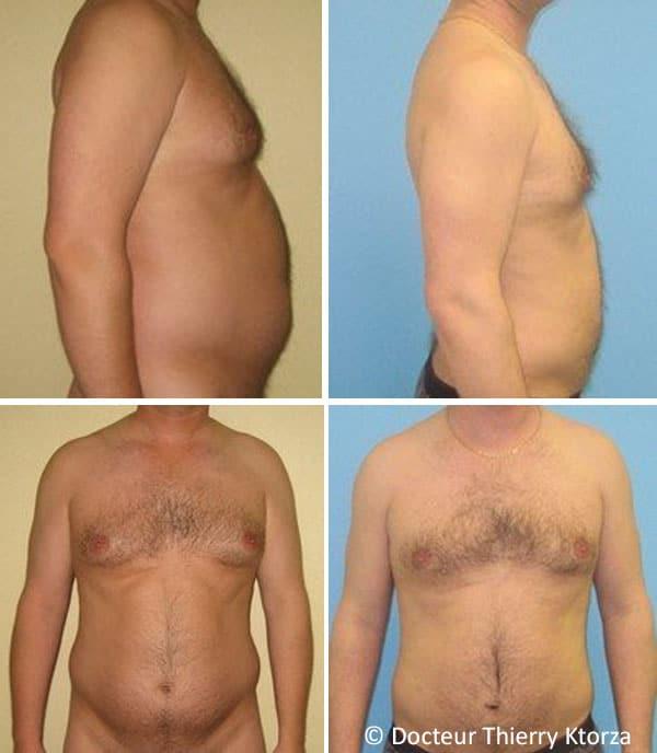 Photo avant et après une liposuccion chez un homme de 40 ans