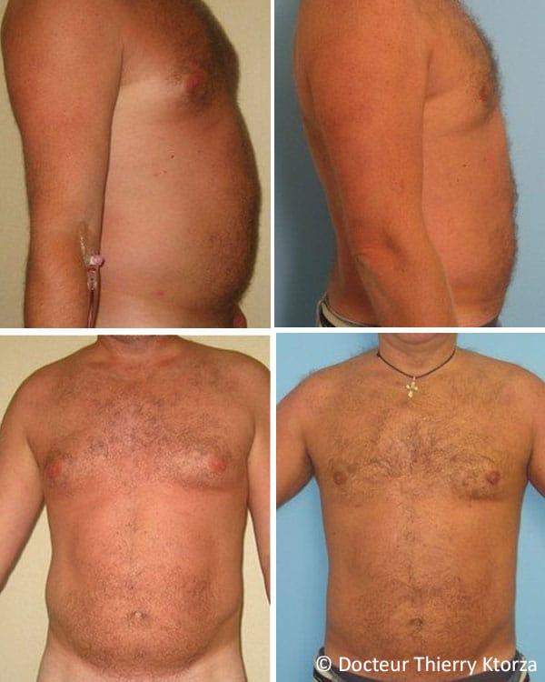 Photo avant et après une liposuccion chez un homme de 42 ans