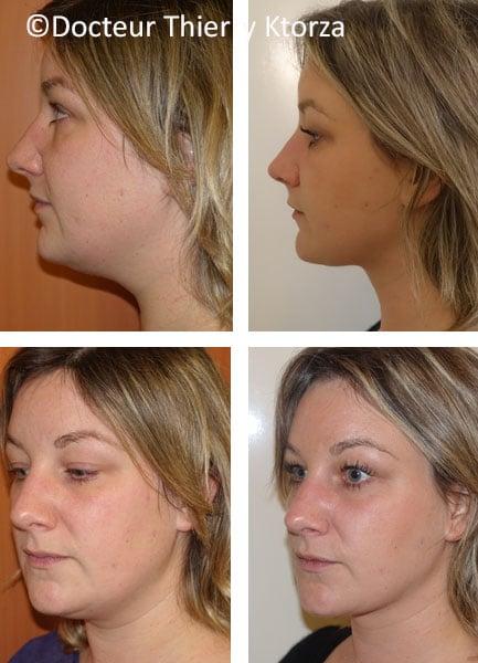 liposuccion du visage chez une femme de 30 ans