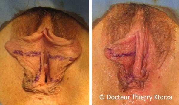 Photo avant et après une nymphoplastie de réduction (technique classqiue)