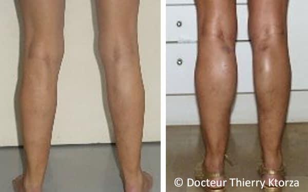 Photo avant et après des prothèses de mollets chez une patiente de 42 ans