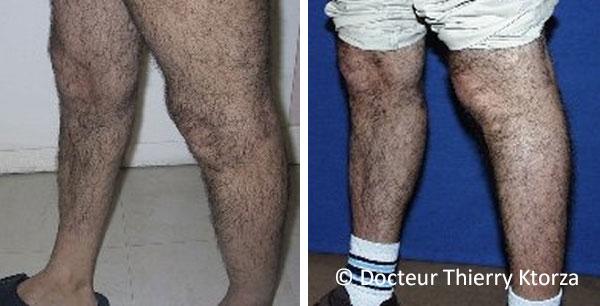 Photo avant et après des prothèses de mollets chez un homme de 40 ans.