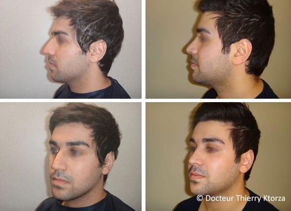 Rhinoplastie pour homme (avant et après)