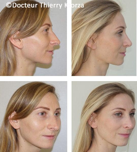 chirurgie du nez trop long