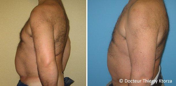 Photo avant et après d'une gynécomastie par le Docteur  Ktorza