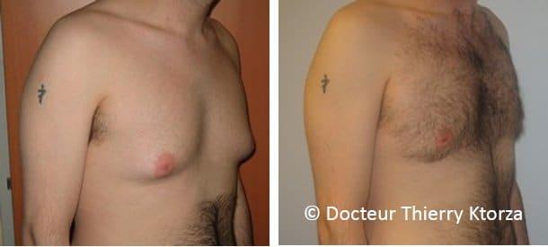 Photo avant et après une gynécomastie chez un homme avant après