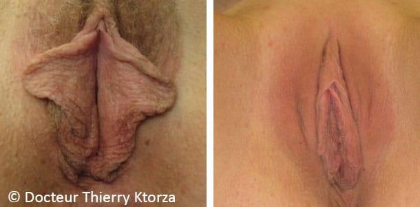 Photo avant et après d'une labiaplastie