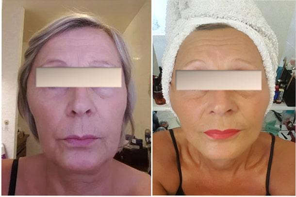 Photo d'une patiente avant et après un lifting du visage sans chirurgie