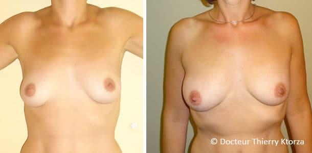 Photo avant et après un lipofilling des seins