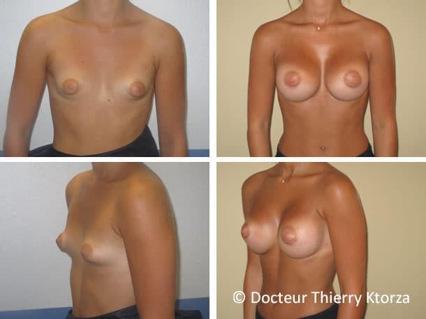 Photo de seins tubéreux nécessitant une augmentation mammaire prise en charge par la sécurité sociale
