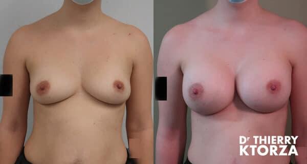 Photos avant et après une augmentation mammaire