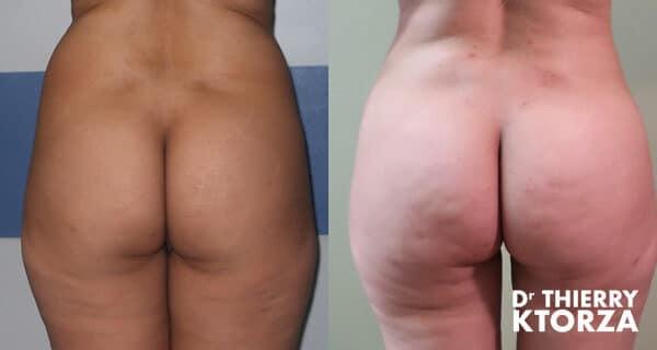 Photos avant et après un brazilian butt lift