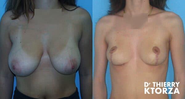 Photos avant et après une hypertrophie mammaire
