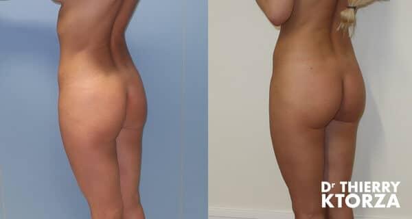 Photos avant et après une injection d'acide hyaluronique dans les fesses