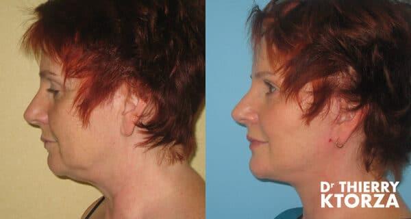 Photos avant et après un lifting du visage