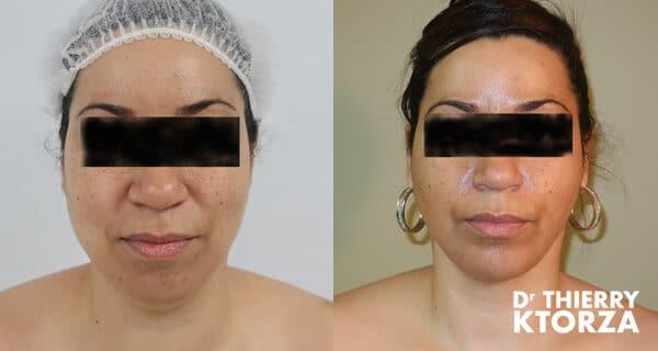 Photo avant et après une lipoaspiration du visage