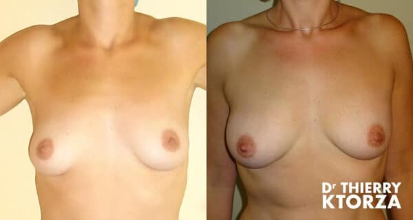 Photos avant et après un lipofilling mammaire