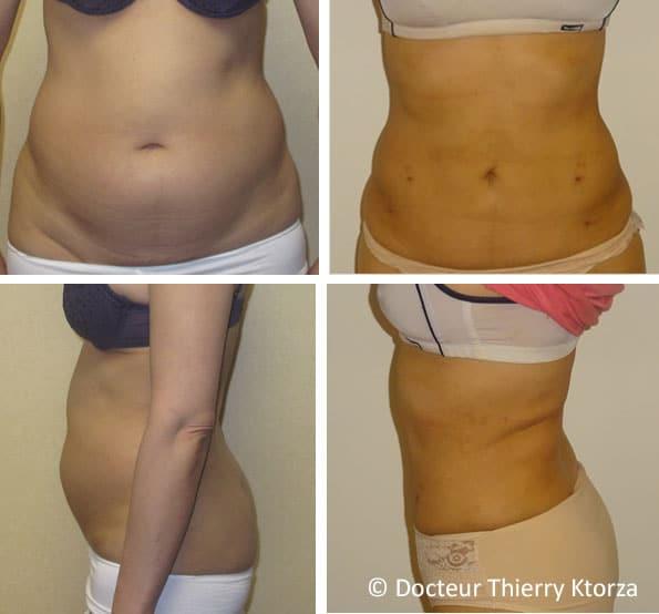 Photos avant et après une liposuccion du ventre