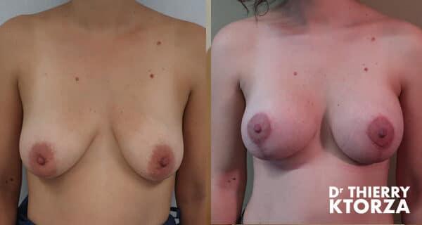 Photos avant et après une mastopexie