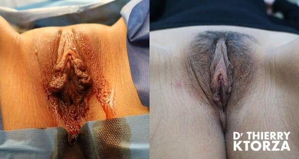 Photo avant et après d'une nymphoplastie de réduction