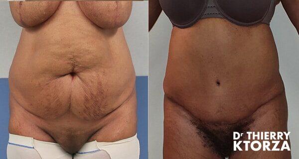 Photos avant et après une plastie abdominale