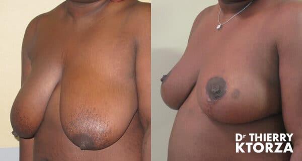 Photo avant et après une réduction mammaire