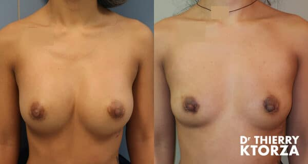 Photos avant et après un retrait d'implants mammaires