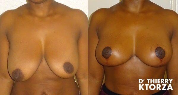 Photos avant et après une ptose mammaire