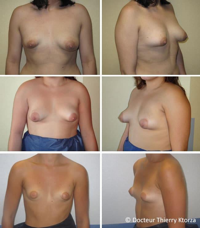 Photos de seins tubéreux