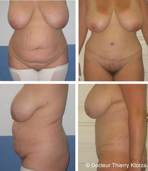 Photo avant et après une plastie abdominale classique chez une patiente de 28 avec prise en charge par la sécurité sociale