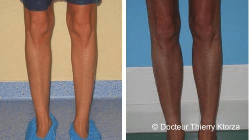 Photo prothèse de mollet avant et après l'intervention
