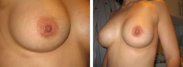 Prothèse mammaire et cicatrice au niveau de l'aréole