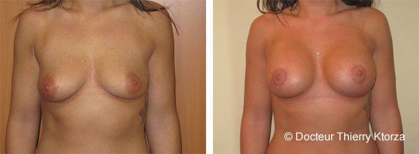 Photo d'une ptôse mammaire avant et après l'intervention