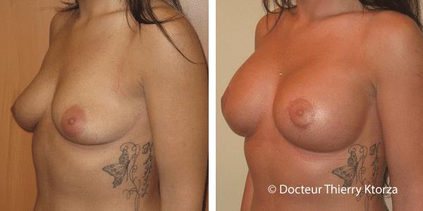 ptose-mammaire-cicatrice-autour-areole
