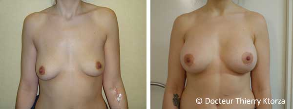 Ptose mammaire et cicatrice via round block