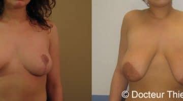 Ptose mammaire : Comment corriger des seins tombants ? 1
