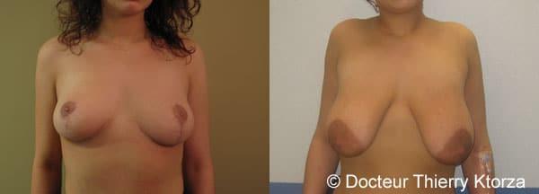 Ptôse mammaire : comment remonter des seins tombants ?